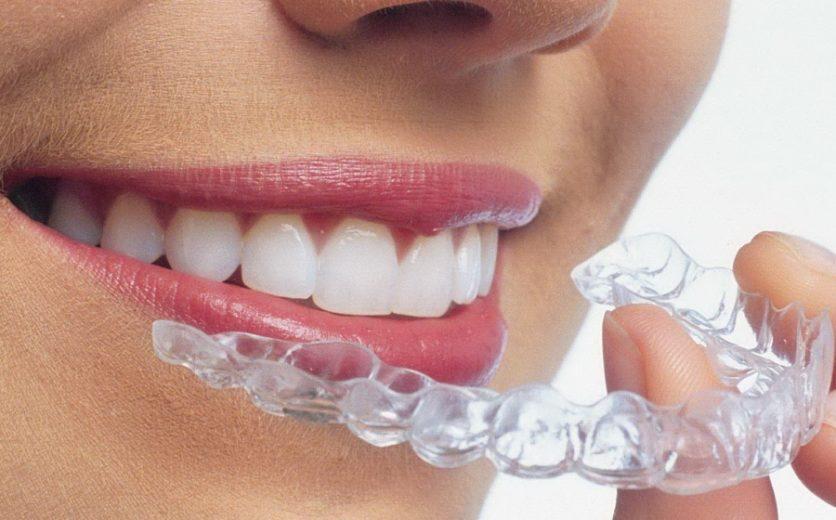 Fiksna proteza podgorica ~ Ortodontska ordinacija Dent-ES