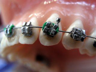 fiksna proteza podgorica stomatoloska ordinacija dent-es podgorica