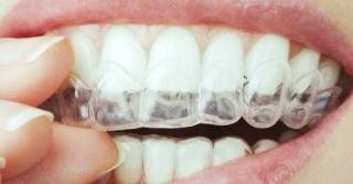 Izbjeljivanje zuba - folija za zube