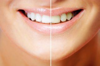 Izbjeljivanje zuba folijom za zube Podgorica
